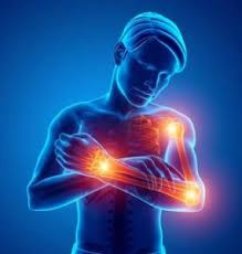 Artroser - lekáreň - užitočné - kúpiť