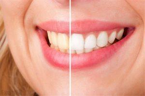 Advanced Teeth Whitening Strips (Dental Whitestrips) - Slovensko - kúpiť - ako použiť