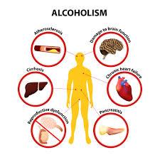 Alkotox - detoxikácia alkoholom- Slovensko - v lekárni - recenzia