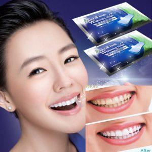 Dental Whitestrips - ako použiť - ako to funguje - Advanced Teeth Whitening Strips