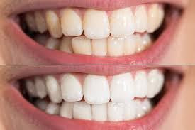 Oral Care - Slovensko - užitočný - ako použiť