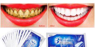 Oral Care - bielenie zubov - ako to funguje - recenzie - výsledok