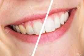 Oral Care - mienky - gél - kúpiť