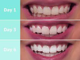 Snowhite Teeth Whitening – užitočný – cena – v lekárni