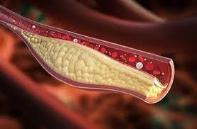 Provinas Patches - na hypertenziu - v lekárni - výsledok - gél