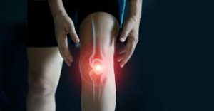 Motion Energy - na bolesti kĺbov – cena – recenzie – výsledo