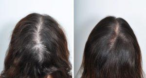 Grow Hair - cena - objednat - predaj - diskusia
