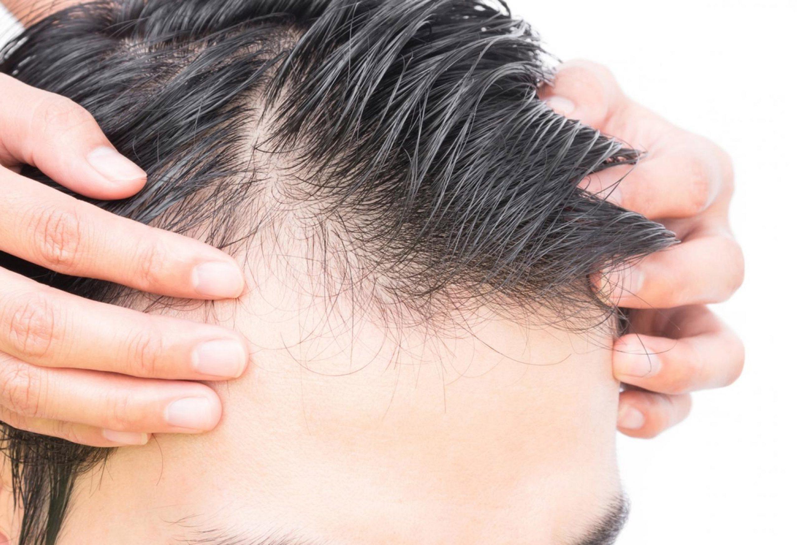 Hairstim - na forum - modry konik - skusenosti - recenzie
